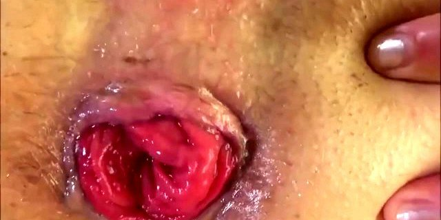 Real Homemade Anal Creampie Compilation
